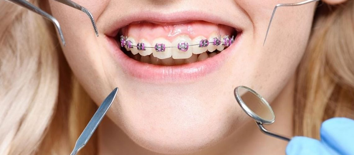 Benefits of visiting an Orthodontists