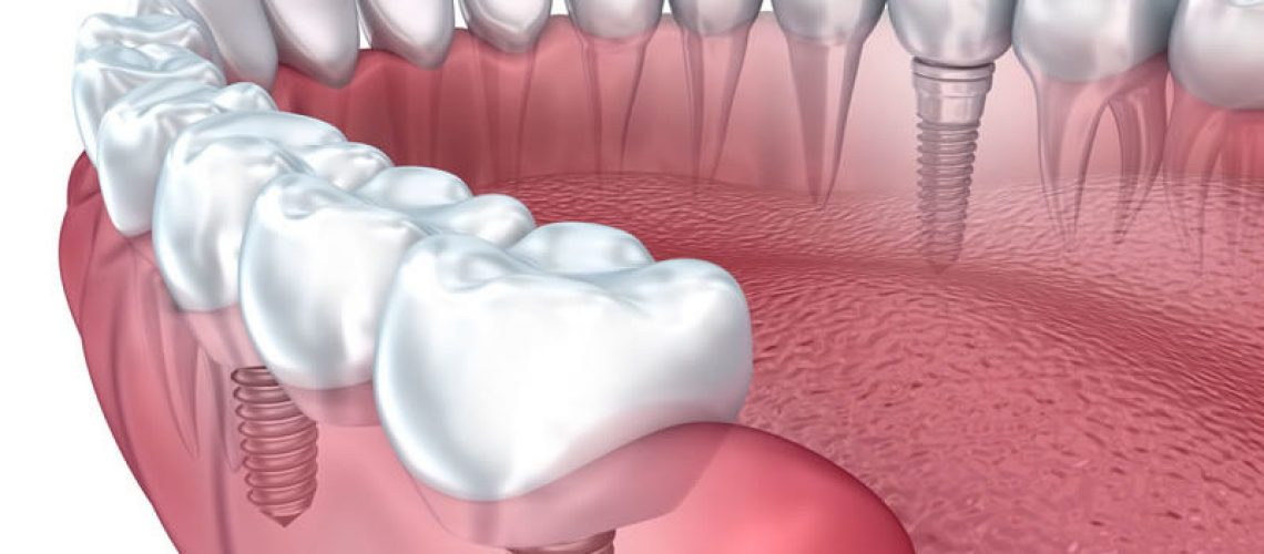 The Importance Of Primary Stability In The Placement Of Dental Implants
